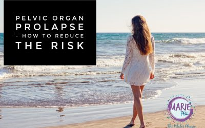 How to reduce the risk of prolapse