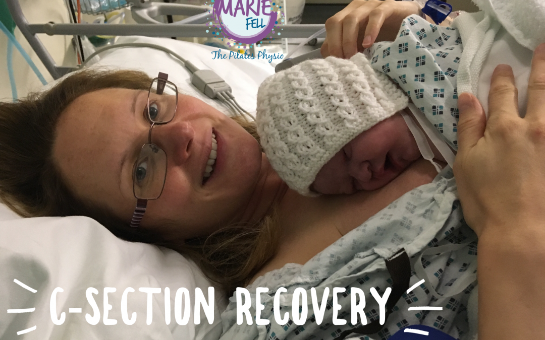 c section recovery Marie Fell The Pilates Physio